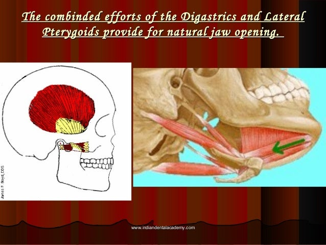 The combinded efforts of the Digastrics and LateralThe combinded efforts of the Digastrics and Lateral Pterygoids provide ...
