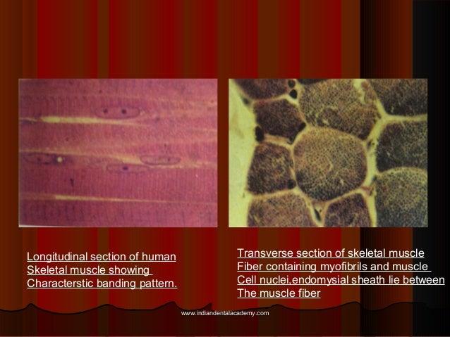 Longitudinal section of human Skeletal muscle showing Characterstic banding pattern. Transverse section of skeletal muscle...