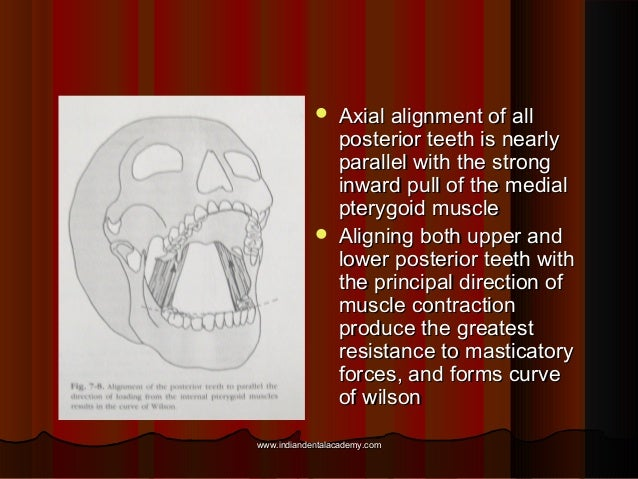  Axial alignment of allAxial alignment of all posterior teeth is nearlyposterior teeth is nearly parallel with the strong...