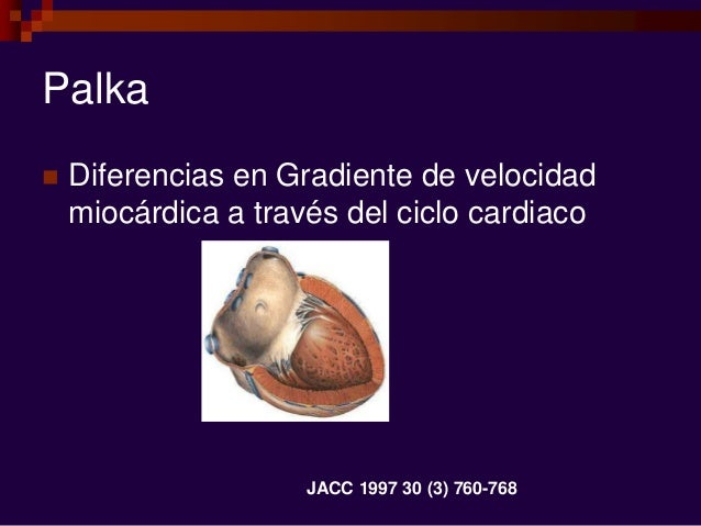 Palka  Diferencias en Gradiente de velocidad miocárdica a través del ciclo cardiaco JACC 1997 30 (3) 760-768