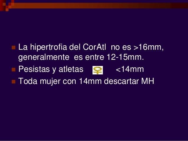  La hipertrofia del CorAtl no es >16mm, generalmente es entre 12-15mm.  Pesistas y atletas <14mm  Toda mujer con 14mm d...