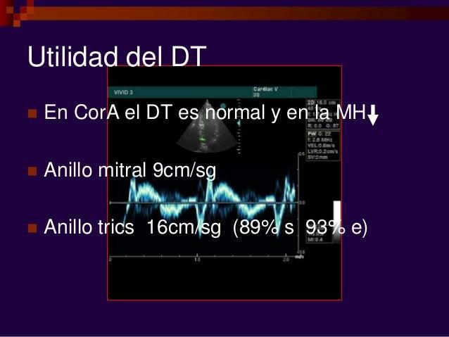 Utilidad del DT  En CorA el DT es normal y en la MH  Anillo mitral 9cm/sg  Anillo trics 16cm/sg (89% s 93% e)