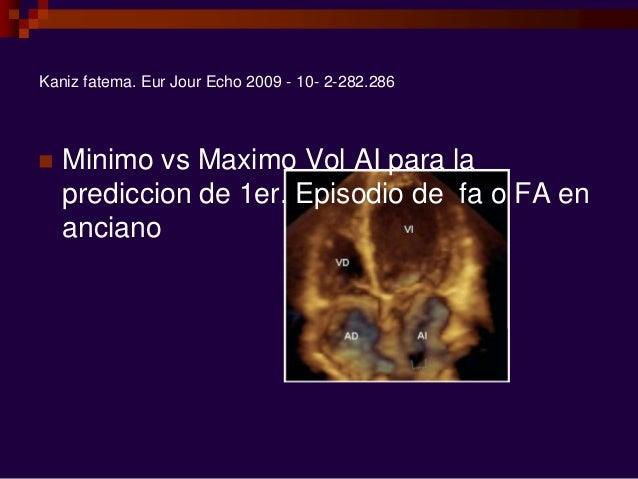 Kaniz fatema. Eur Jour Echo 2009 - 10- 2-282.286  Minimo vs Maximo Vol AI para la prediccion de 1er. Episodio de fa o FA ...
