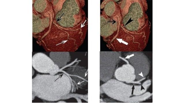 Corazón en tomografía computada
