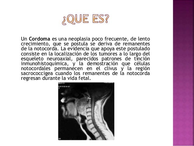 Cordoma Slide 2