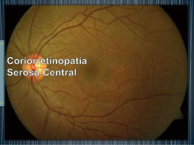 • Desprendimiento de retina neurosensorial • Acumulo de liquido • Capa externa de fotorreceptores • Epitelio pigmentado de...