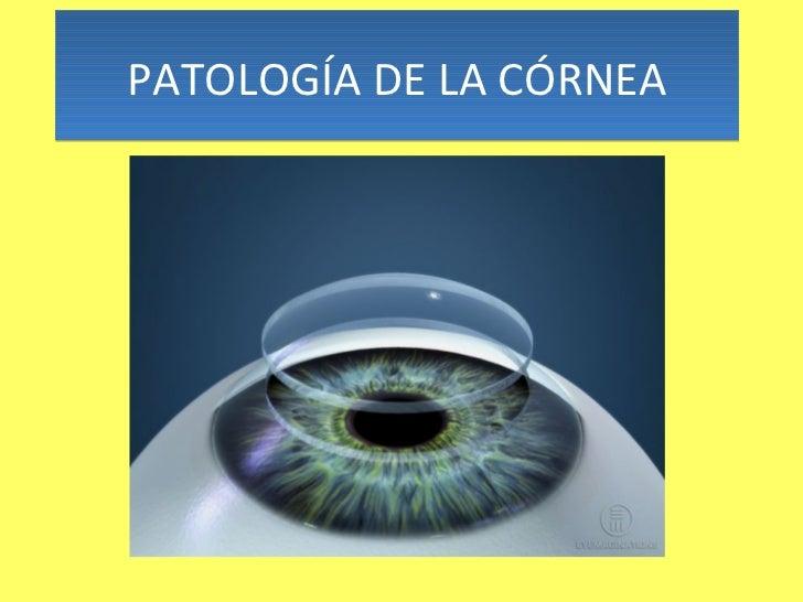 PATOLOGÍA DE LA CÓRNEA
