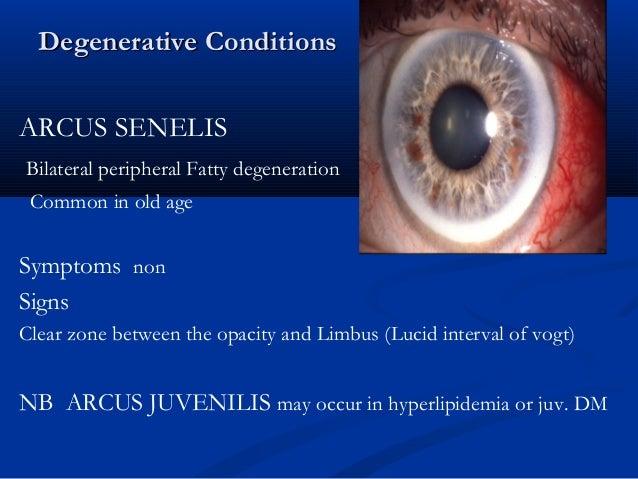 Arcus Juvenilis Cornea for undergradua...