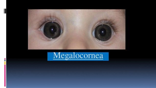 cornea deutsch
