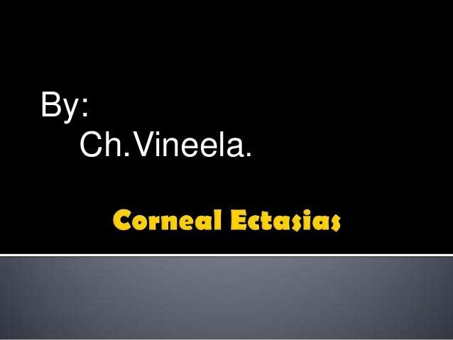 By: Ch.Vineela.