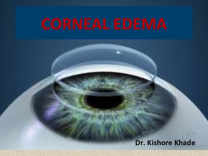 CORNEAL EDEMA         Dr. Kishore Khade