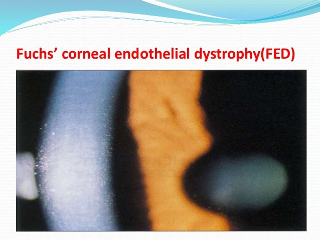 cataracts and endothelial cell dystrophy in dogs Natural loss of endothelial cells and decline in density with age  some breeds of dogs eg boston terriers, chihuahuas, springer spaniels seem to have a natural breed-related dystrophy which results in abnormal function at an earlier age than.