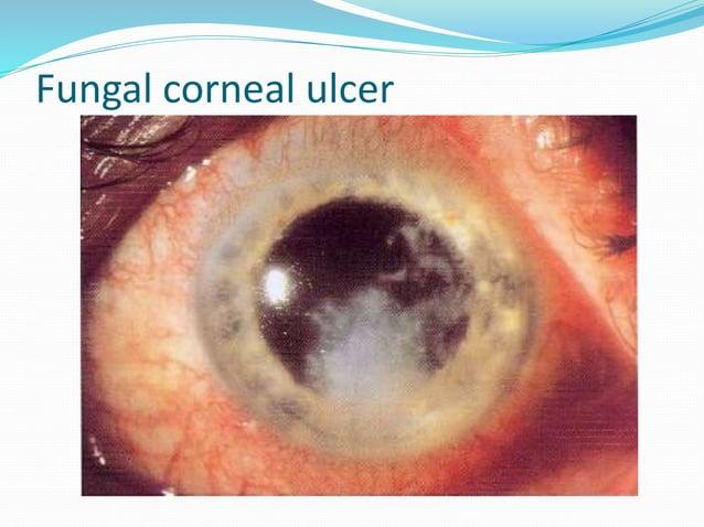 Differential Diagnosis - Acute conjunctivitis - Acute iridocyclitis - Acute congestive glaucoma
