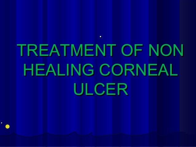 .. TREATMENT OF NONTREATMENT OF NON HEALING CORNEALHEALING CORNEAL ULCERULCER ..