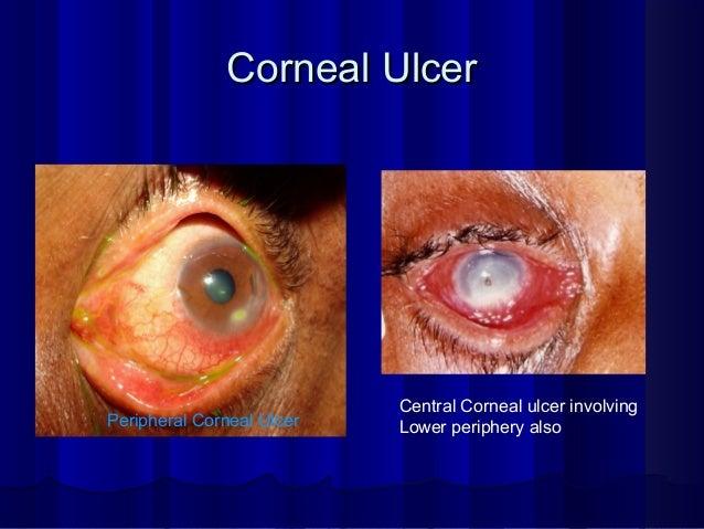 Corneal UlcerCorneal Ulcer Peripheral Corneal Ulcer Central Corneal ulcer involving Lower periphery also