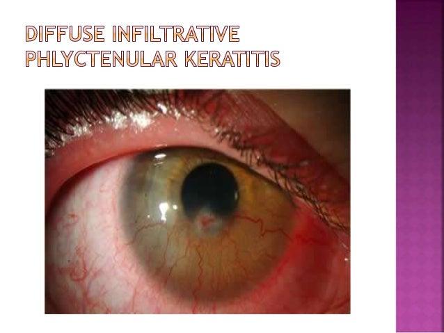 ocular rosacea steroids