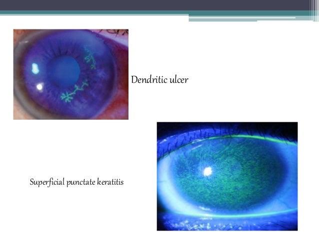 Dendritic ulcer Superficial punctate keratitis
