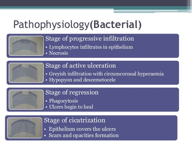 Pathophysiology(Bacterial) Stage of progressive infiltration • Lymphocytes infiltrates in epithelium • Necrosis Stage of a...