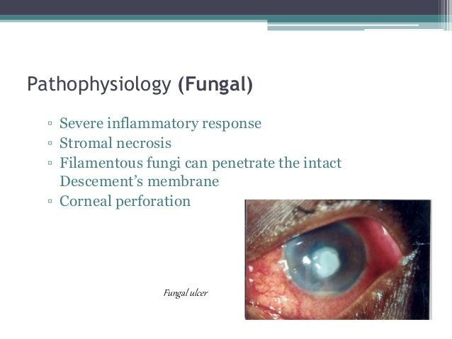 Pathophysiology (Fungal) ▫ Severe inflammatory response ▫ Stromal necrosis ▫ Filamentous fungi can penetrate the intact De...