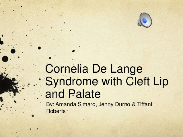 Cornelia De Lange Syndrome with Cleft Lip and Palate By: Amanda Simard, Jenny Durno & Tiffani Roberts
