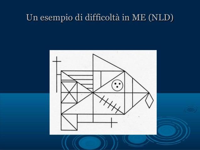 Un esempio di difficoltà in ME (NLD)Un esempio di difficoltà in ME (NLD)