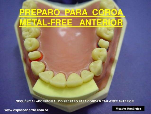PREPARO PARA COROA METAL-FREE ANTERIOR  SEQUÊNCIA LABORATORIAL DO PREPARO PARA COROA METAL-FREE ANTERIOR  www.espacoabertt...