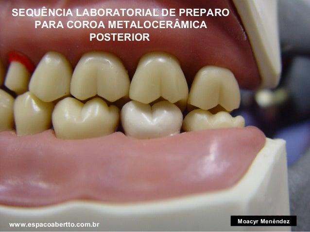 SEQUÊNCIA LABORATORIAL DE PREPARO PARA COROA METALOCERÂMICA POSTERIOR  www.espacoabertto.com.br  Moacyr Menéndez