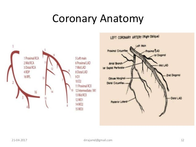 Coronary Angiogram An Overview
