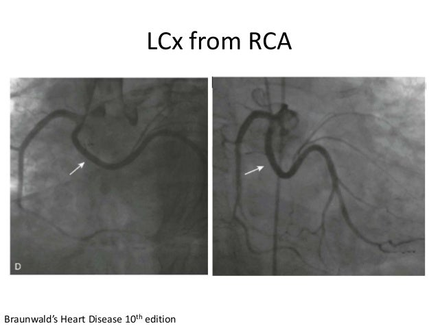 LCx from RCA Braunwald's Heart Disease 10th edition