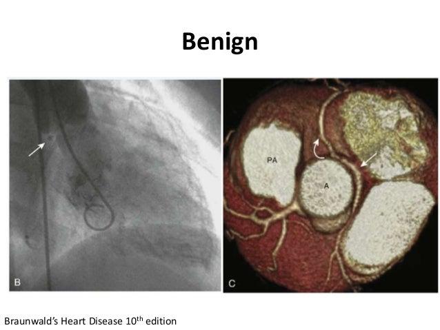 Benign Braunwald's Heart Disease 10th edition