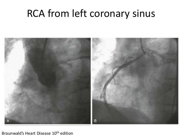 RCA from left coronary sinus Braunwald's Heart Disease 10th edition