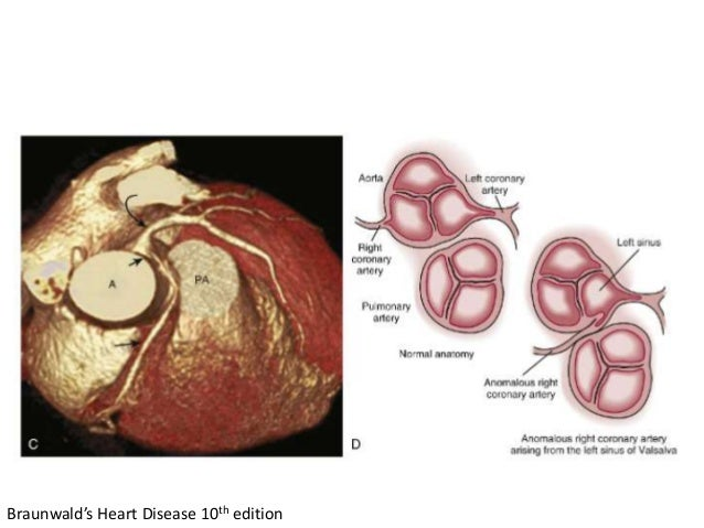 Braunwald's Heart Disease 10th edition