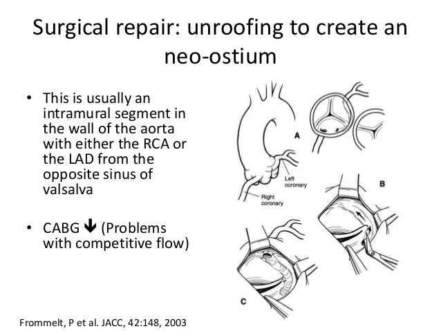 Surgical repair: unroofing to create an neo-ostium • This is usually an intramural segment in the wall of the aorta with e...