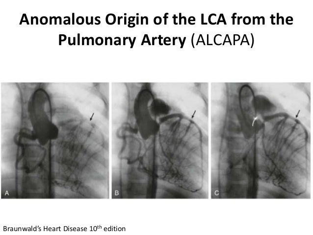 Anomalous Origin of the LCA from the Pulmonary Artery (ALCAPA) Braunwald's Heart Disease 10th edition