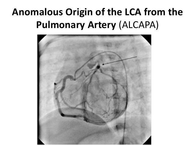 Anomalous Origin of the LCA from the Pulmonary Artery (ALCAPA)