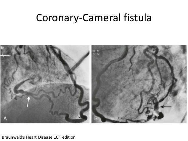 Coronary-Cameral fistula Braunwald's Heart Disease 10th edition