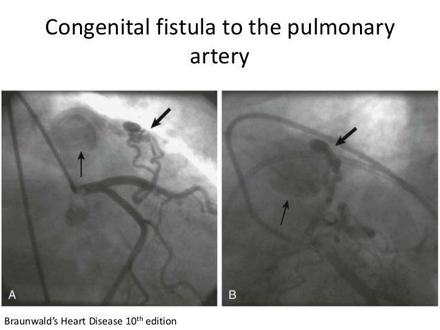 Congenital fistula to the pulmonary artery Braunwald's Heart Disease 10th edition