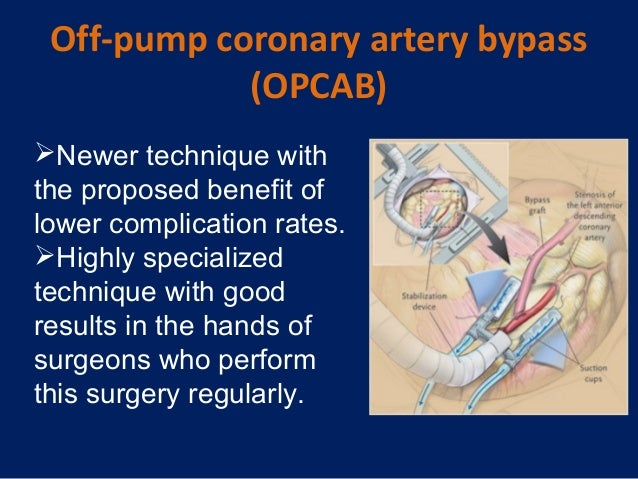 on pump coronary artery bypass surgery