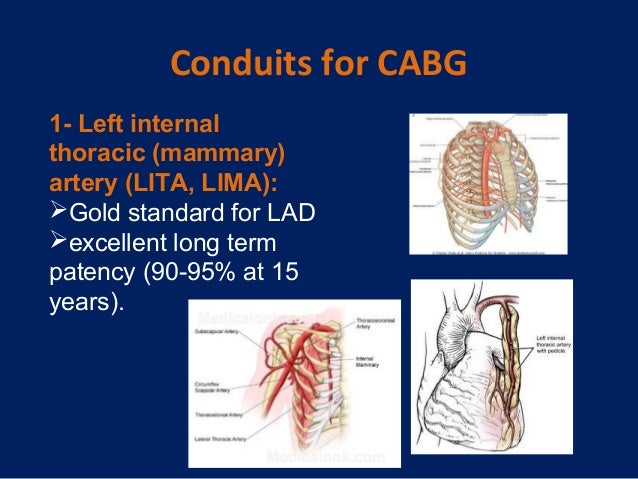 """risk factors in coronary artery bypass graft Coronary artery bypass graft surgery is one of several major advances in the effort to manage cardiovascular disease—the leading cause of death and disability in the united states you may have heard this surgery referred to simply as """"bypass surgery"""" or as cabg (pronounced """"cabbage"""" and short for """"coronary artery bypass graft"""")."""