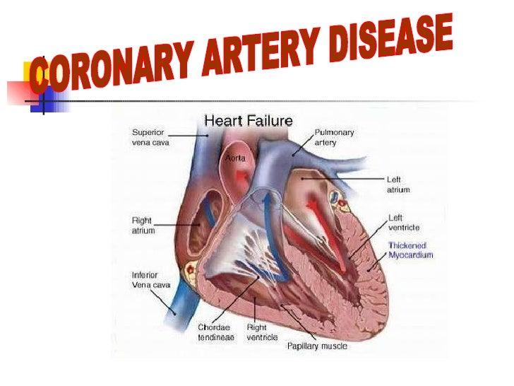 Coronary Artery Disease Sec 3