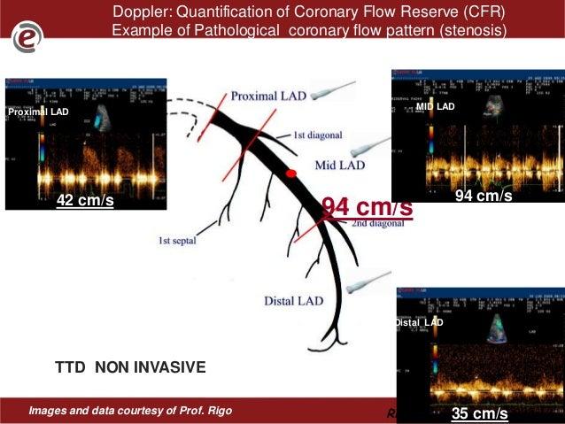 Doppler flow study