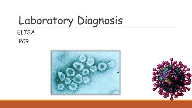 Laboratory Diagnosis ELISA PCR