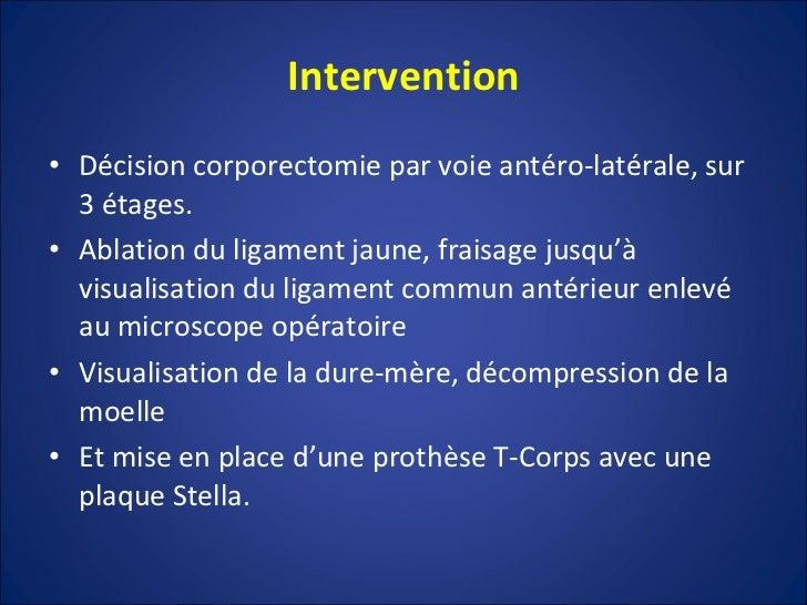 Intervention <ul><li>Décision corporectomie par voie antéro-latérale, sur 3 étages. </li></ul><ul><li>Ablation du ligament...