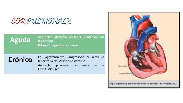 Donde encontrar Presión arterial normal