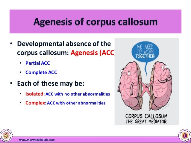 corpus callosum anomalies, Sphenoid