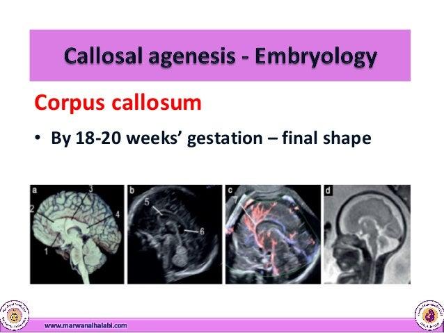Corpus Callosum Anomalies