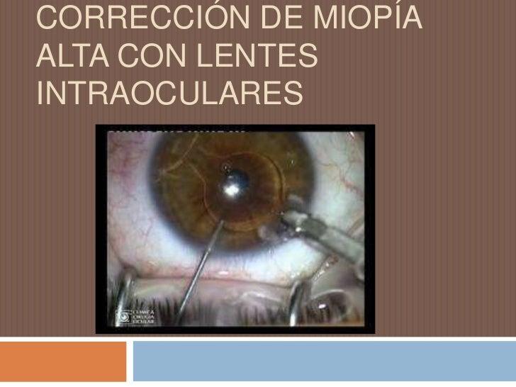 CORRECCIÓN DE MIOPÍA ALTA CON LENTES INTRAOCULARES<br />