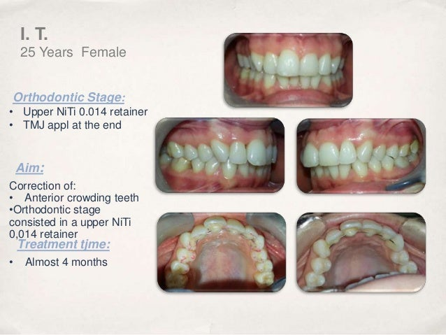 orthodontic correction of crowded teeth Assembly line orthodontics can damage faces while some tools are better than others for correcting imbalanced bite patterns or crowded teeth.