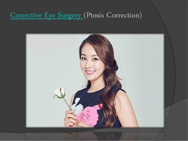 Corrective Eye Surgery (Ptosis Correction)