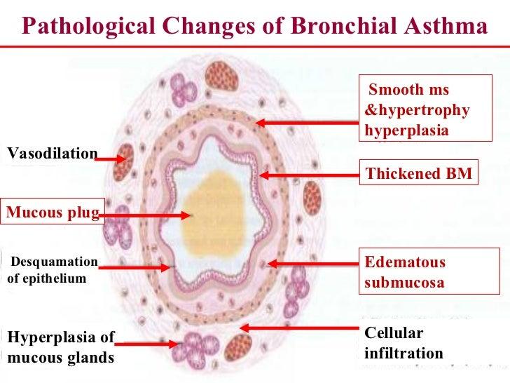 pathophysiology & immunity of asthma